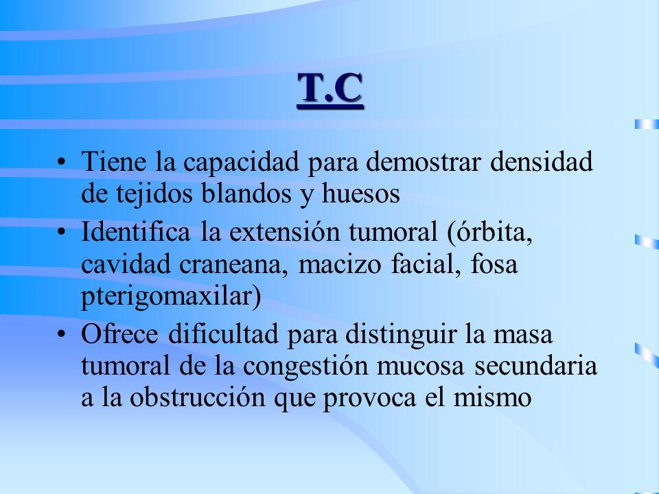 T.C Tiene la capacidad para demostrar densidad de tejidos blandos y huesos Identifica la extensión tumoral (órbita, cavidad craneana, macizo facial, f