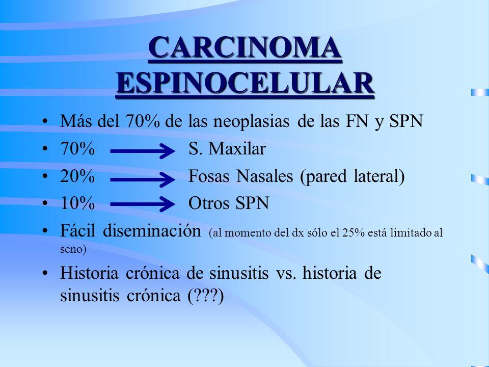 CARCINOMA ESPINOCELULAR Más del 70% de las neoplasias de las FN y SPN 70%S. Maxilar 20%Fosas Nasales (pared lateral) 10%Otros SPN Fácil diseminación (