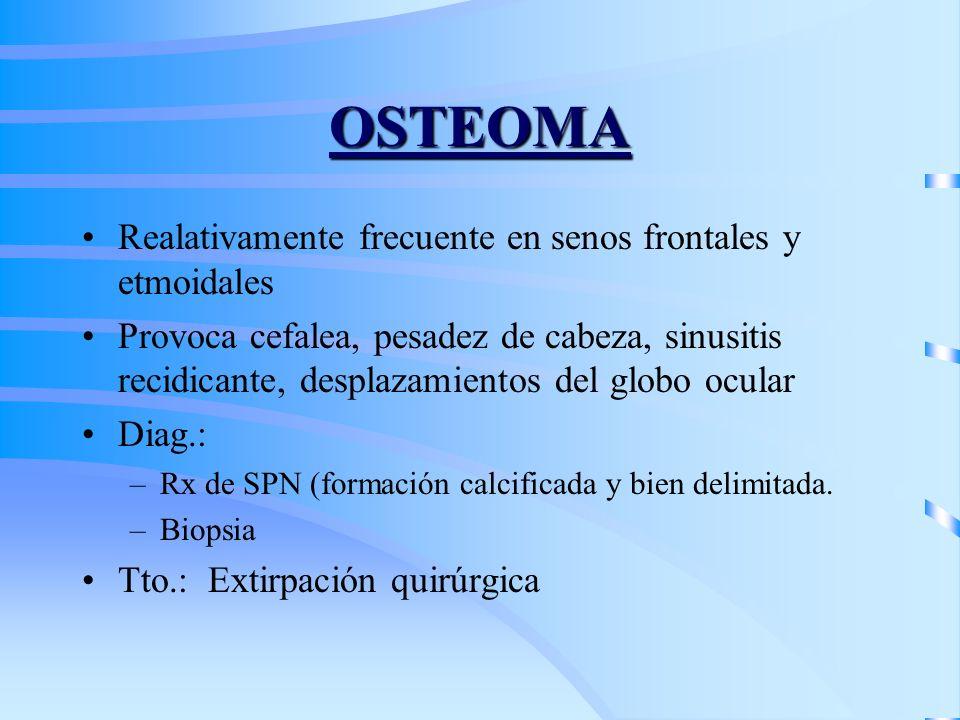 OSTEOMA Realativamente frecuente en senos frontales y etmoidales Provoca cefalea, pesadez de cabeza, sinusitis recidicante, desplazamientos del globo
