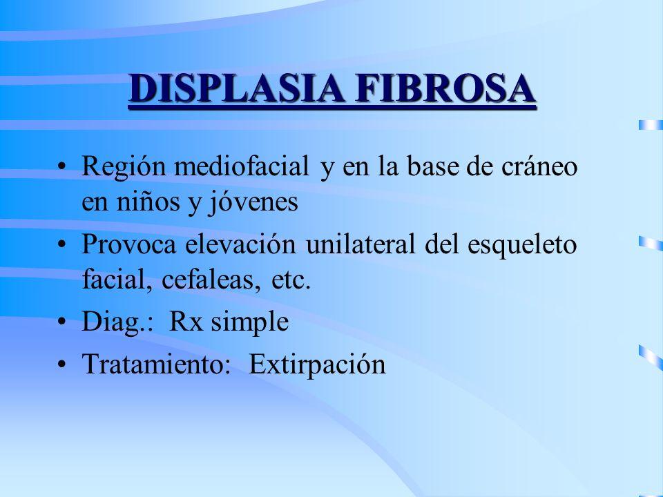 DISPLASIA FIBROSA Región mediofacial y en la base de cráneo en niños y jóvenes Provoca elevación unilateral del esqueleto facial, cefaleas, etc. Diag.