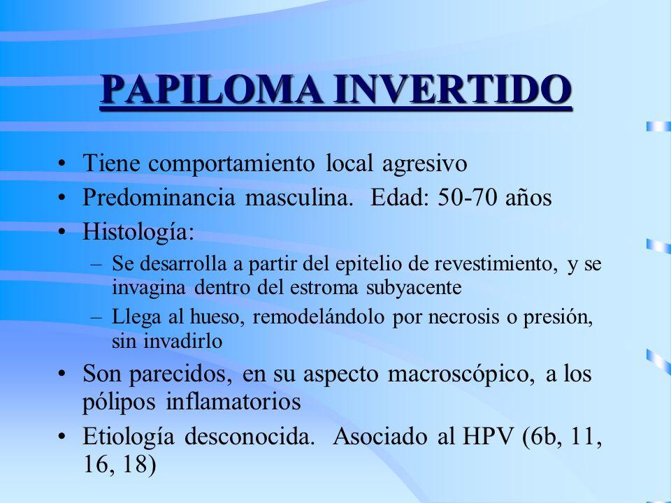 PAPILOMA INVERTIDO Tiene comportamiento local agresivo Predominancia masculina. Edad: 50-70 años Histología: –Se desarrolla a partir del epitelio de r