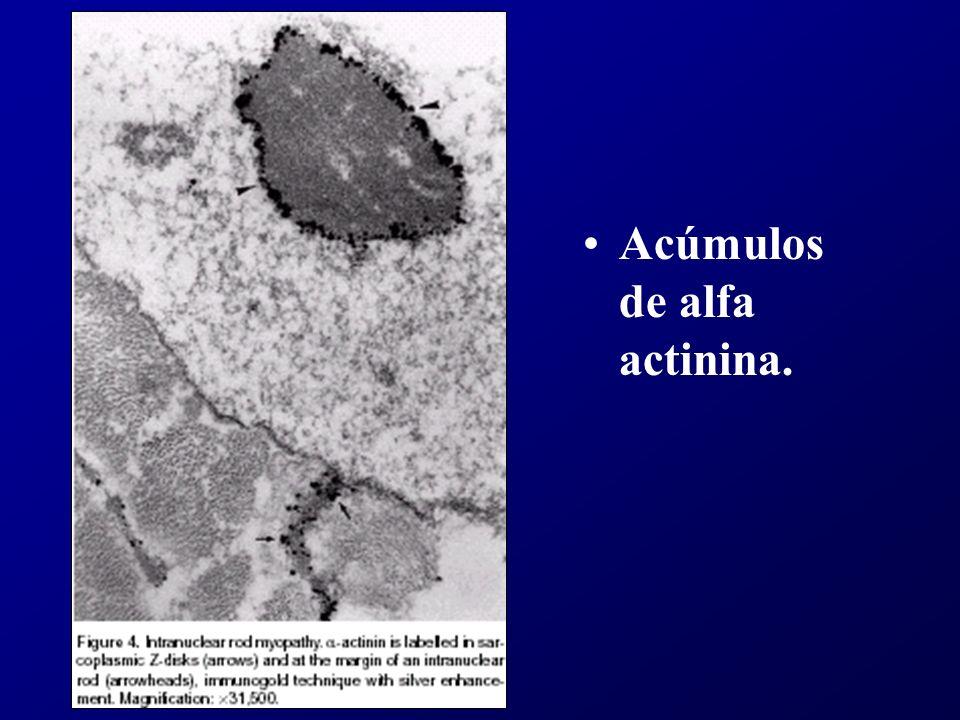En resumen Nemalínica: Formas precoces: hipotonías congénitas.