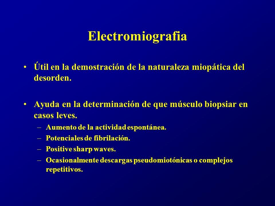 Tratamiento.Corticoesteroides.