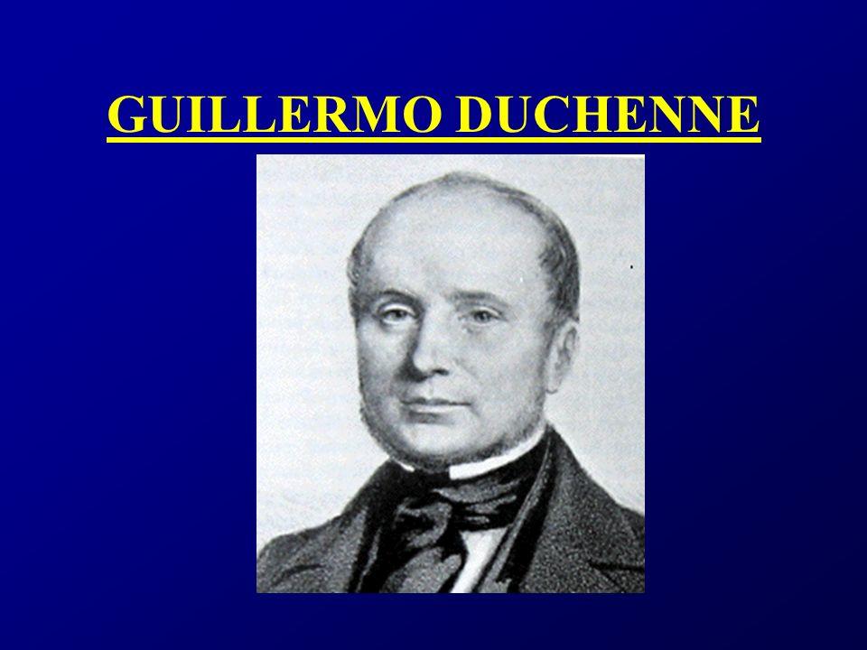 DISTROFIA DE DUCHENNE Y BECKER Distrofia de Duchenne: Enfermedad de herencia recesiva ligada al cromosoma X.