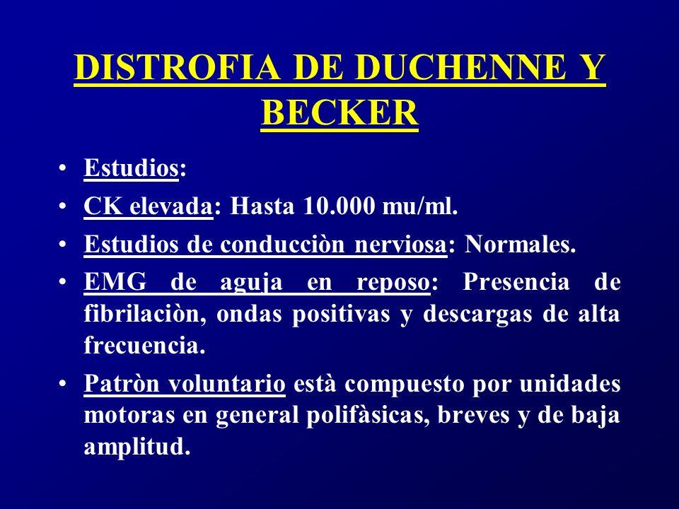 DISTROFIA DE DUCHENNE Y BECKER Biopsia muscular: Muestra un patròn distròfico con intensa fibrosis endomisial, fibras hipercontraìdas, diferentes grados de necrosis.