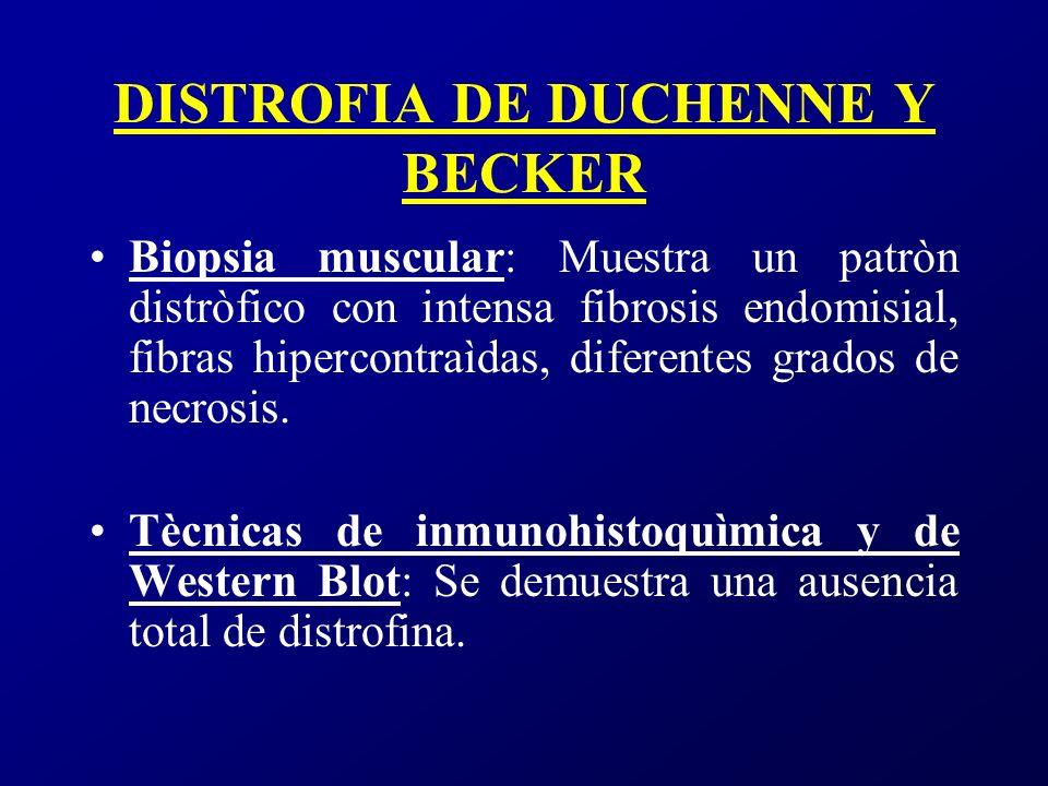 DISTROFIA DUCHENNE MICROSCOPÌA