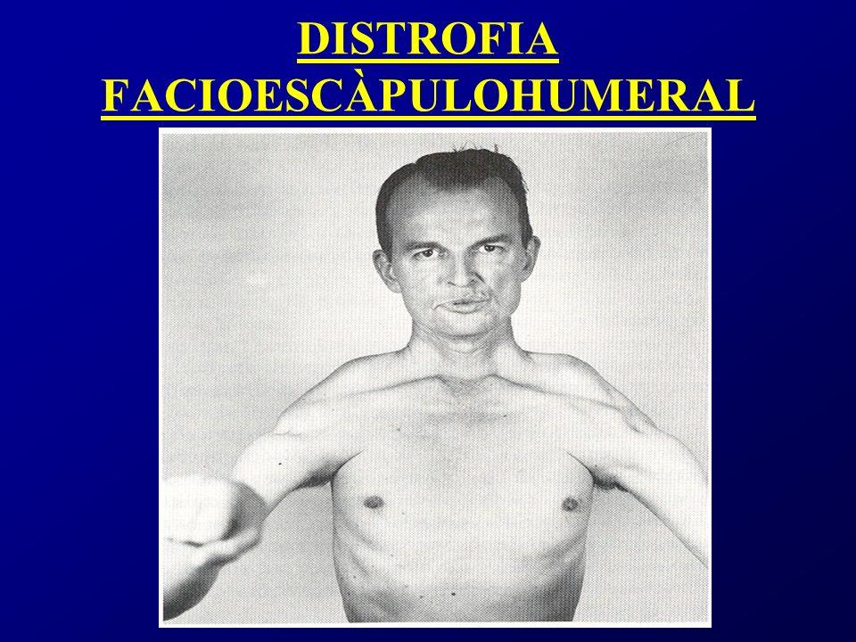 Miopatias mitocondriales