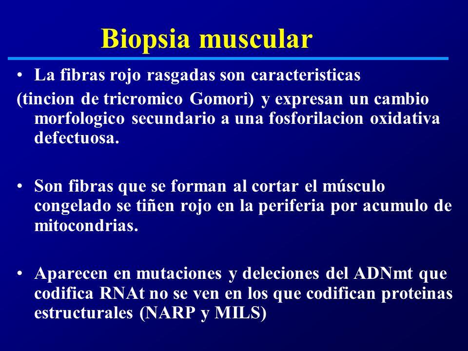 Biopsia muscular La fibras rojo rasgadas son caracteristicas (tincion de tricromico Gomori) y expresan un cambio morfologico secundario a una fosforil