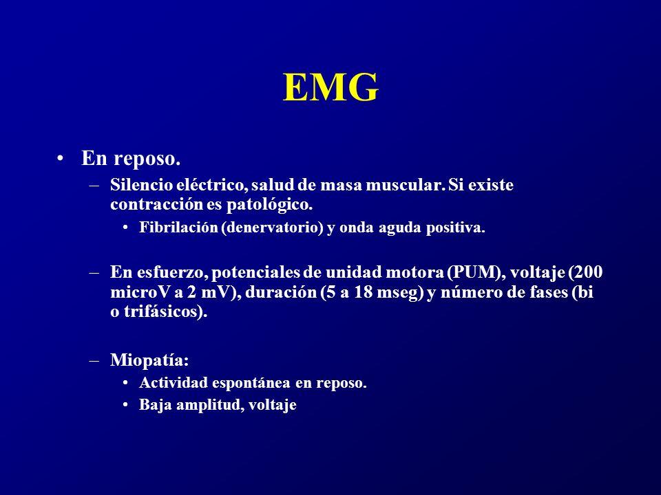 Síntoma cardinal miopatías: –Debilidad muscular.