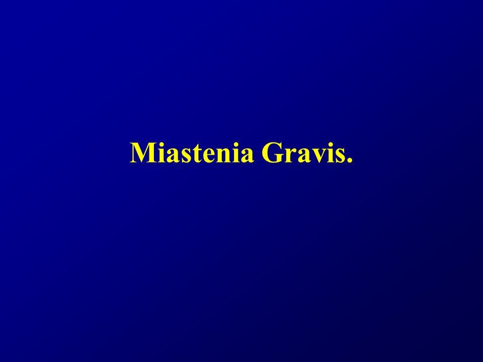Definición La Miastenia Gravis (MG) es una enfermedad autoinmune que afecta la transmisión neuromuscular por presencia de anticuerpos antirreceptores de Ach, presentándose debilidad muscular fluctuante que aumenta con el ejercicio y disminuye con el reposo o con fármacos anticolinesterásicos.