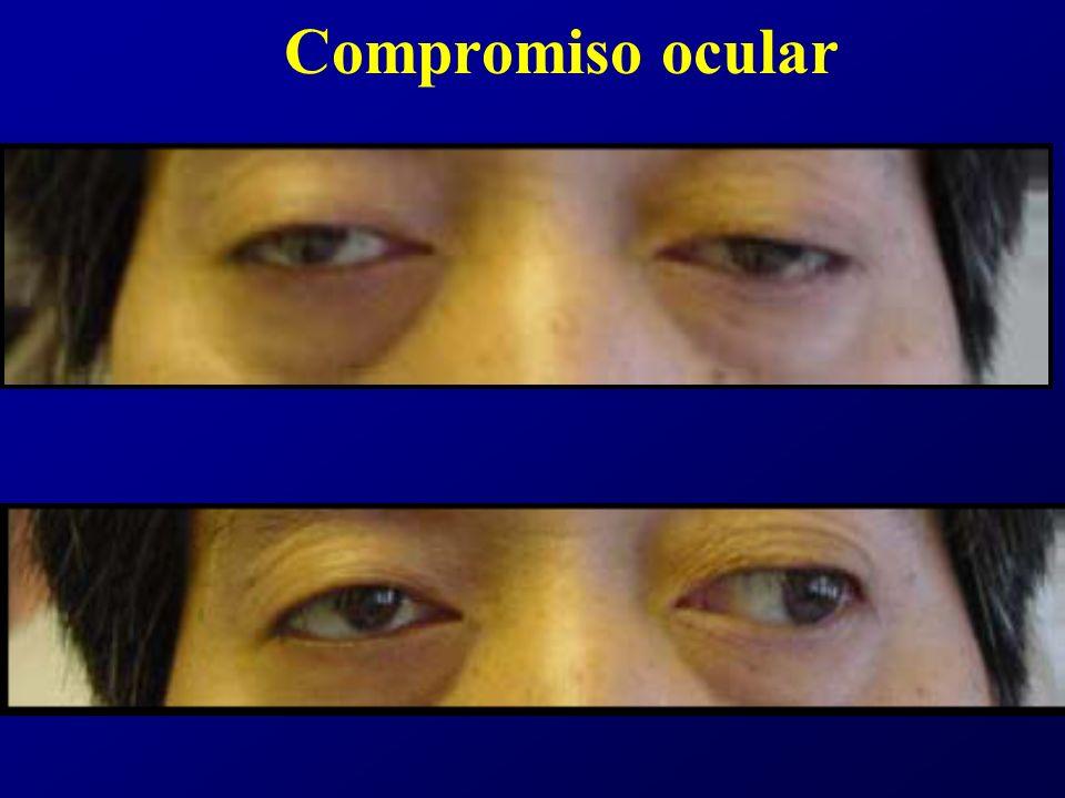 Clasificación de Osserman GRUPO I (Ocular): –15-20%.