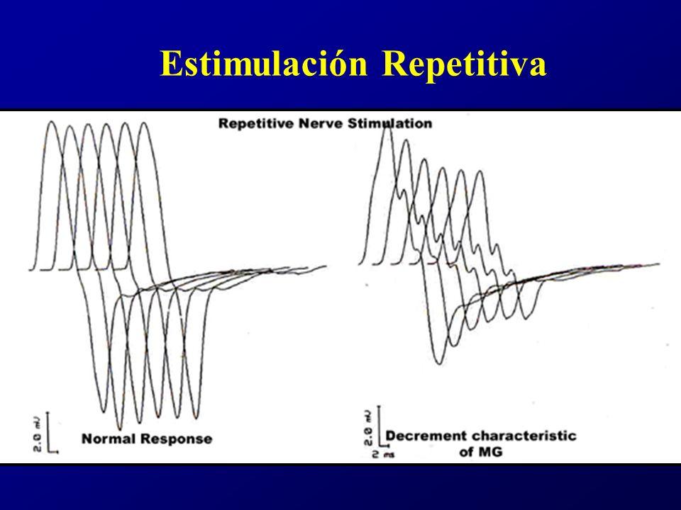 Diagnóstico Diferencial Sd.