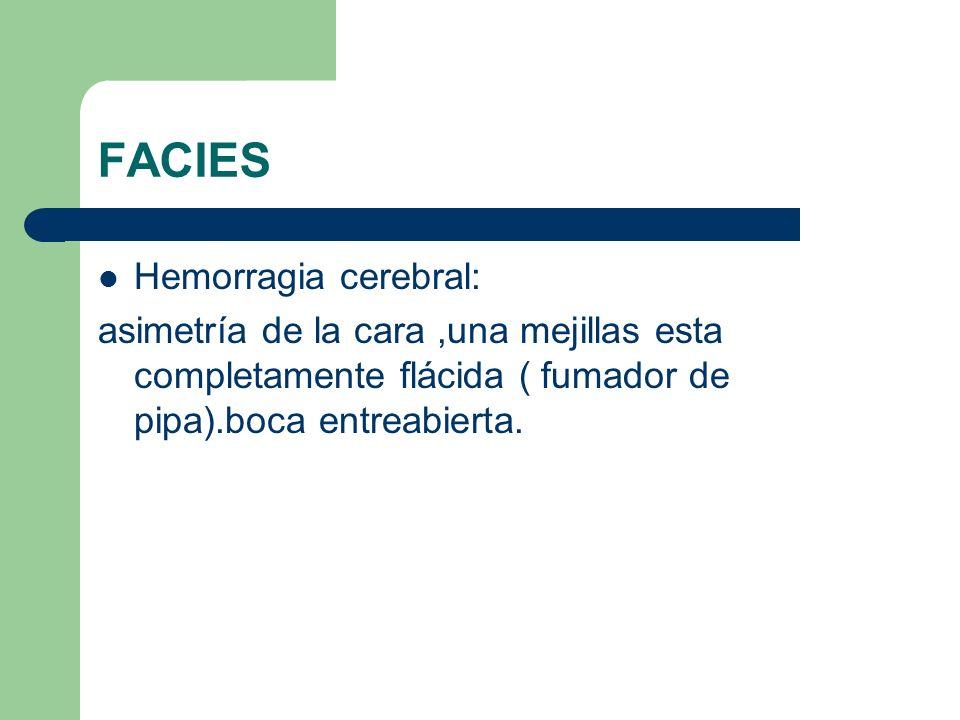 FACIES Hemorragia cerebral: asimetría de la cara,una mejillas esta completamente flácida ( fumador de pipa).boca entreabierta.