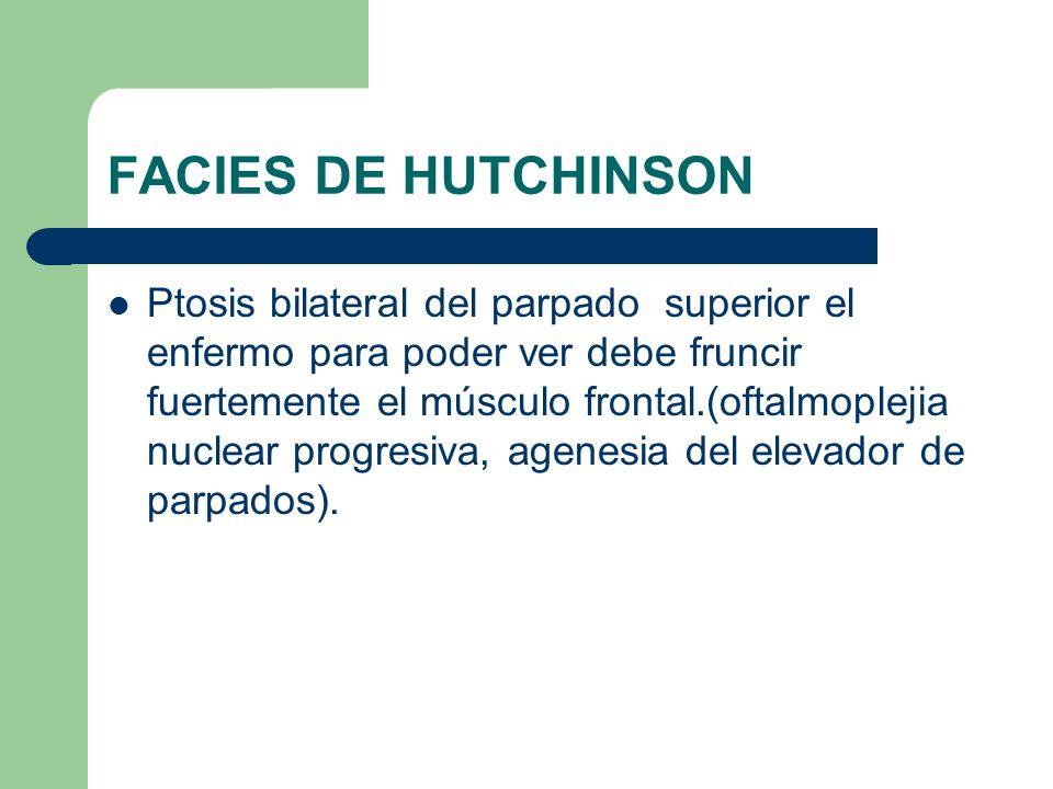 FACIES DE HUTCHINSON Ptosis bilateral del parpado superior el enfermo para poder ver debe fruncir fuertemente el músculo frontal.(oftalmoplejia nuclea