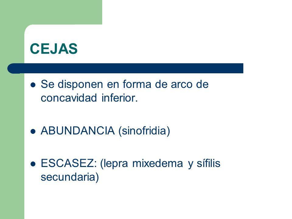 CEJAS Se disponen en forma de arco de concavidad inferior. ABUNDANCIA (sinofridia) ESCASEZ: (lepra mixedema y sífilis secundaria)