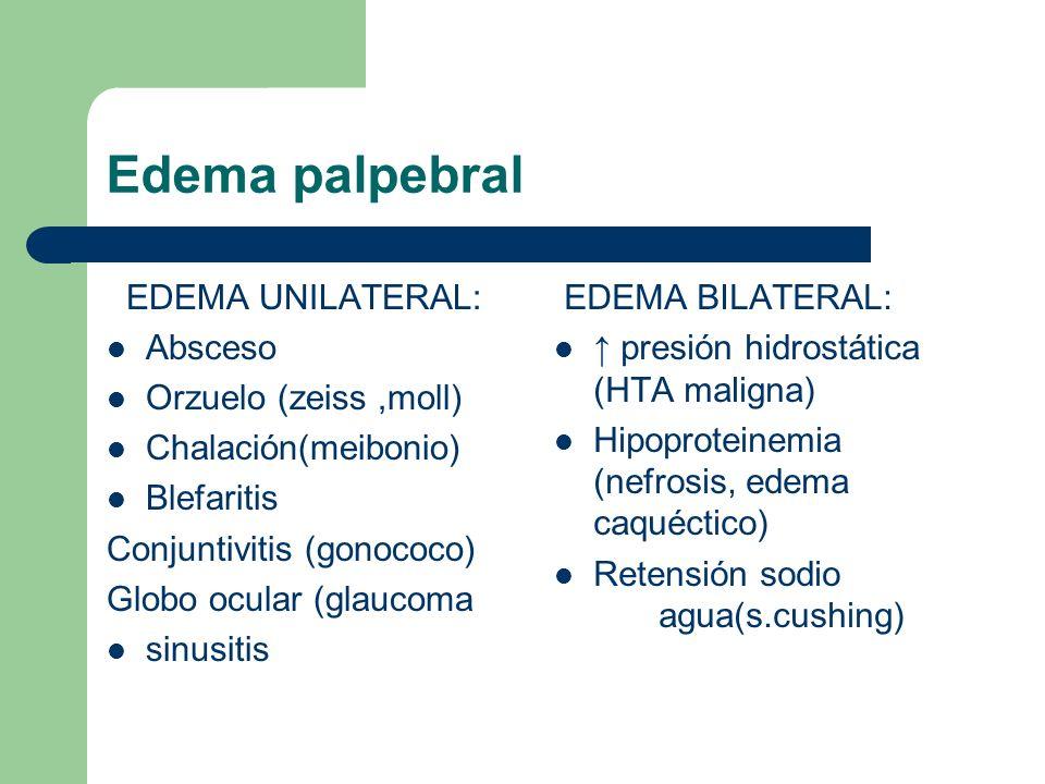 Edema palpebral EDEMA UNILATERAL: Absceso Orzuelo (zeiss,moll) Chalación(meibonio) Blefaritis Conjuntivitis (gonococo) Globo ocular (glaucoma sinusiti