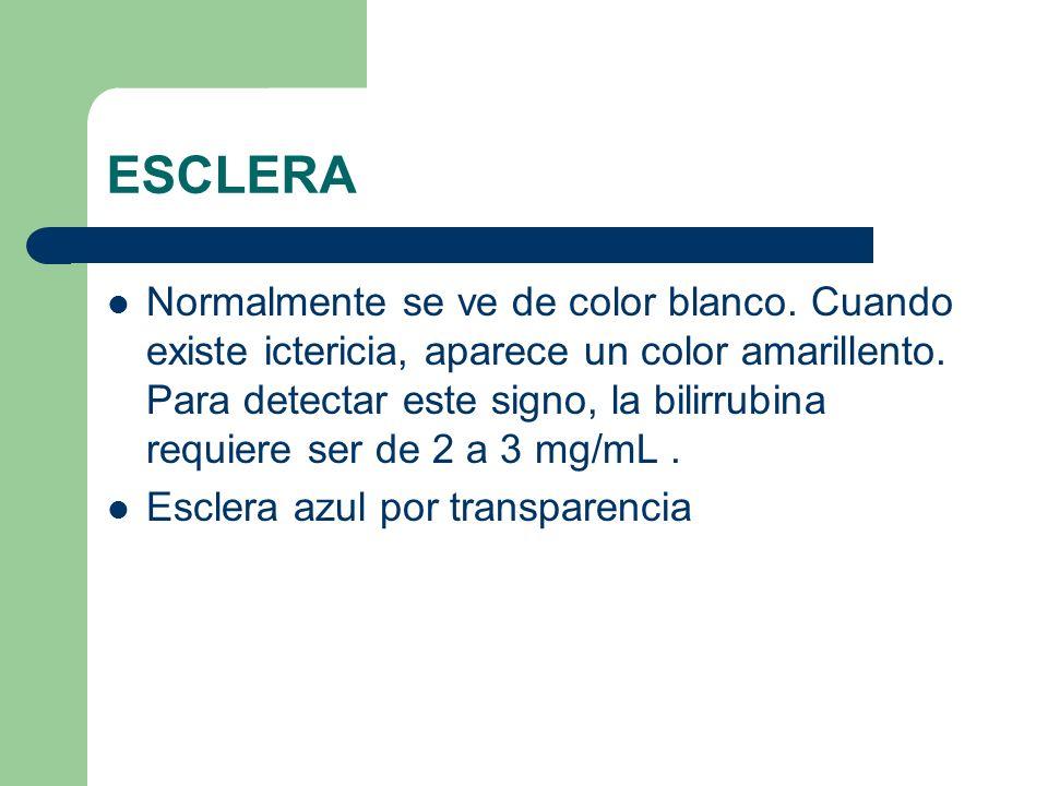 ESCLERA Normalmente se ve de color blanco. Cuando existe ictericia, aparece un color amarillento. Para detectar este signo, la bilirrubina requiere se