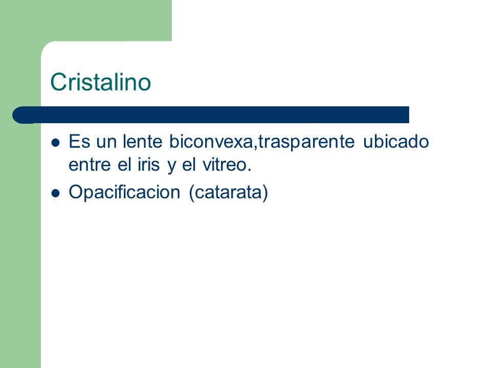Cristalino Es un lente biconvexa,trasparente ubicado entre el iris y el vitreo. Opacificacion (catarata)
