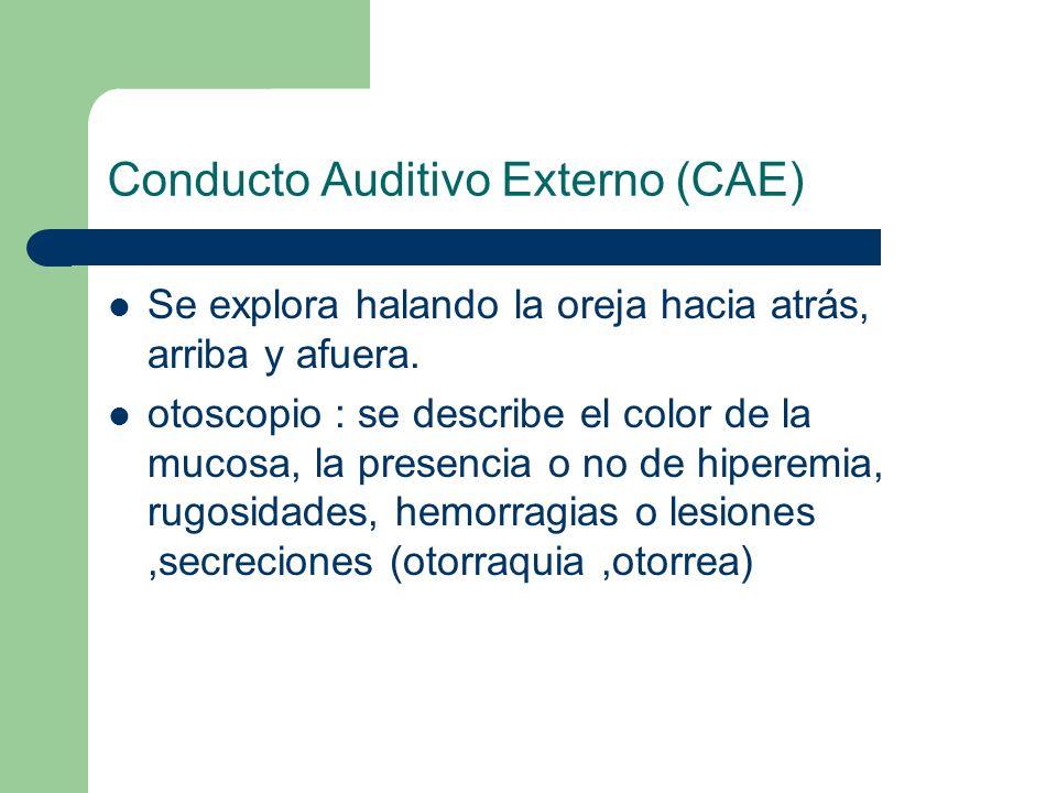 Conducto Auditivo Externo (CAE) Se explora halando la oreja hacia atrás, arriba y afuera. otoscopio : se describe el color de la mucosa, la presencia