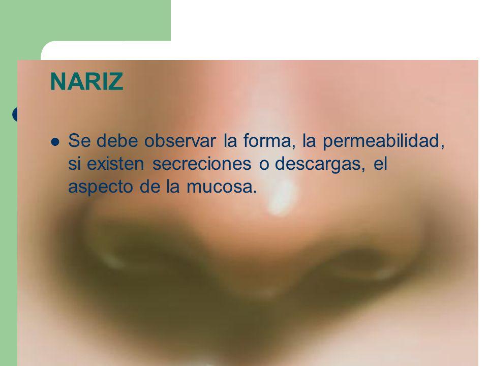 NARIZ Se debe observar la forma, la permeabilidad, si existen secreciones o descargas, el aspecto de la mucosa.
