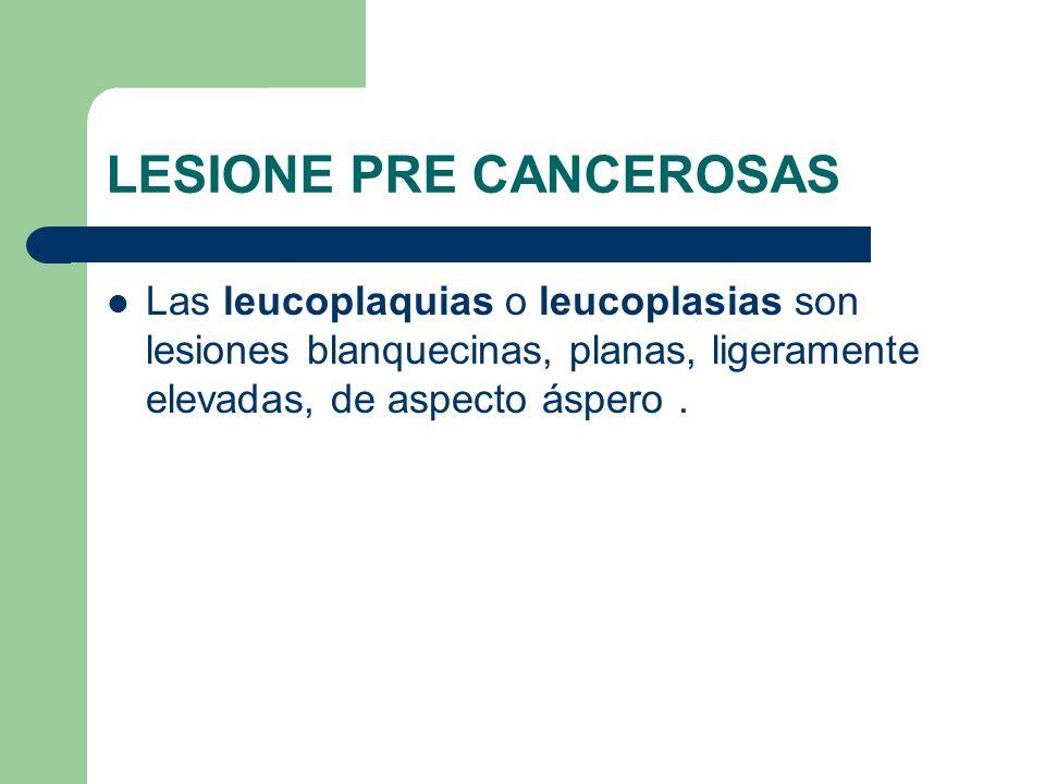 LESIONE PRE CANCEROSAS Las leucoplaquias o leucoplasias son lesiones blanquecinas, planas, ligeramente elevadas, de aspecto áspero.