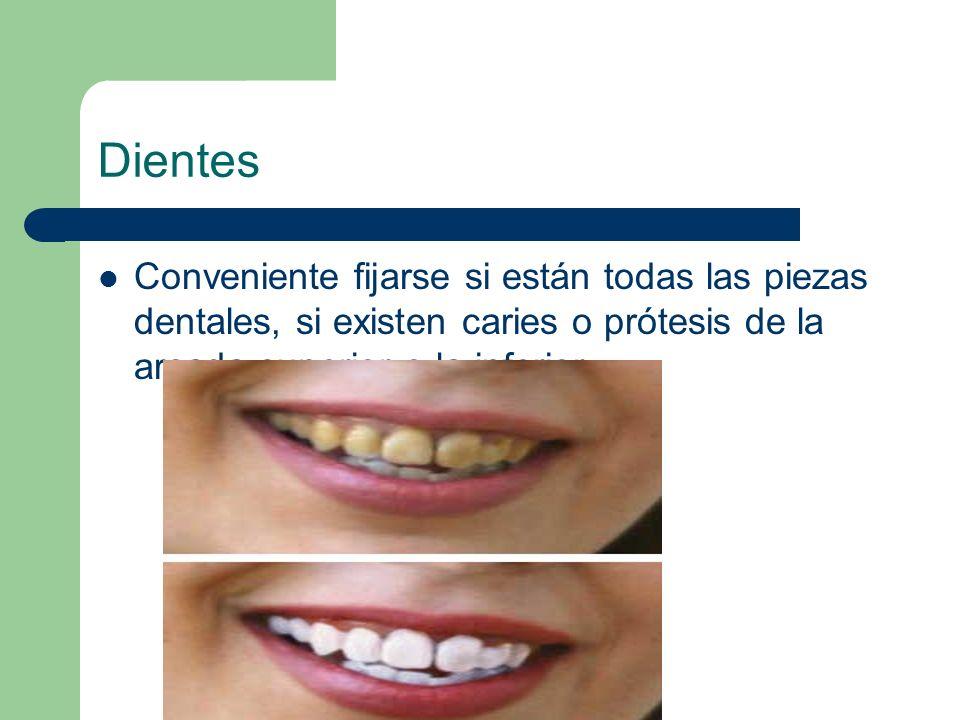 Dientes Conveniente fijarse si están todas las piezas dentales, si existen caries o prótesis de la arcada superior o la inferior.