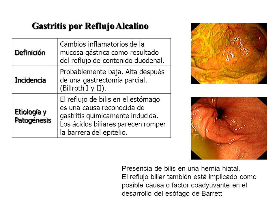 Gastritis por Reflujo Alcalino Gastritis por Reflujo Alcalino Definición Cambios inflamatorios de la mucosa gástrica como resultado del reflujo de con