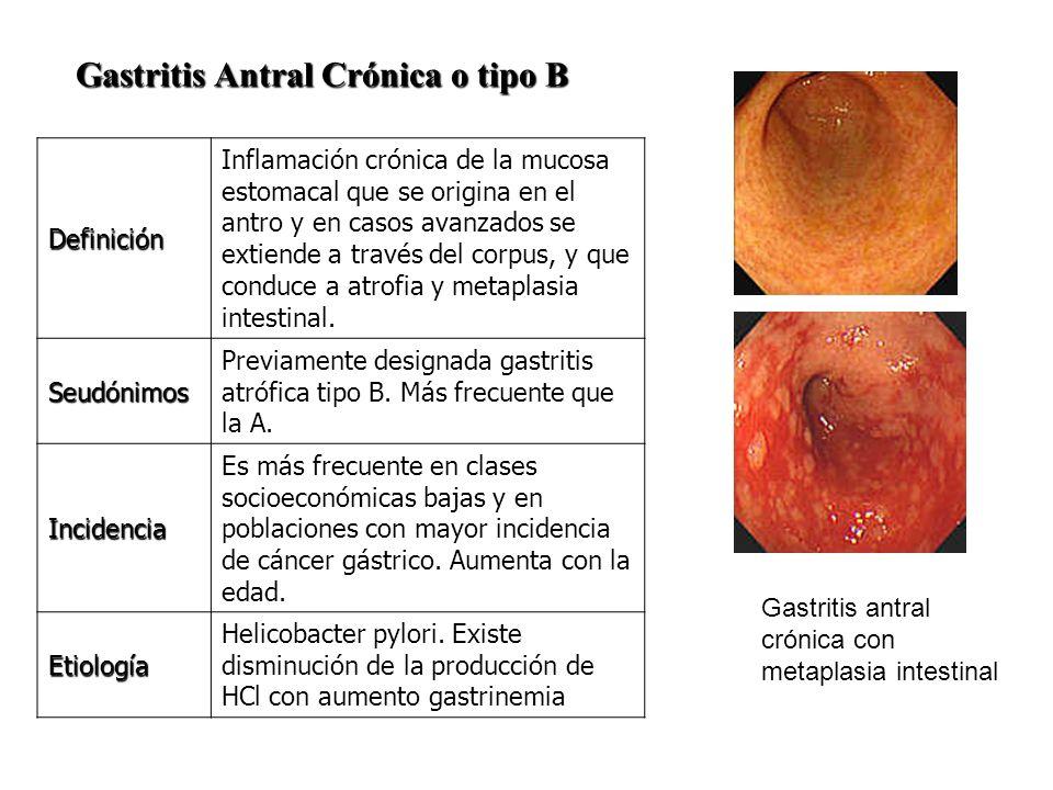 Gastritis Antral Crónica o tipo B Gastritis Antral Crónica o tipo B Definición Inflamación crónica de la mucosa estomacal que se origina en el antro y