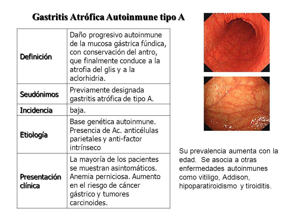 Gastritis Atrófica Autoinmune tipo A Definición Daño progresivo autoinmune de la mucosa gástrica fúndica, con conservación del antro, que finalmente c