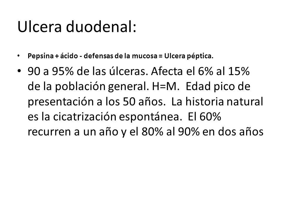 Ulcera duodenal: Pepsina + ácido - defensas de la mucosa = Ulcera péptica. 90 a 95% de las úlceras. Afecta el 6% al 15% de la población general. H=M.