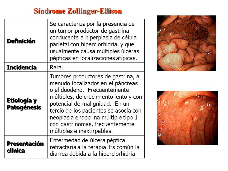 Síndrome Zollinger-Ellison Síndrome Zollinger-Ellison Definición Se caracteriza por la presencia de un tumor productor de gastrina conducente a hiperp
