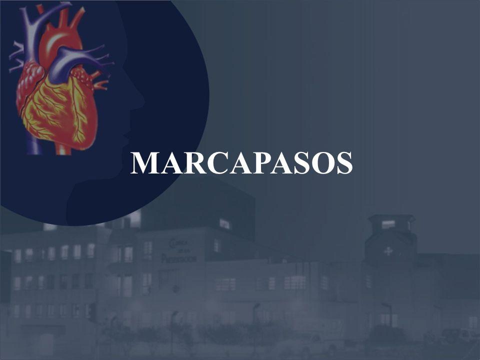 MARCAPASOS