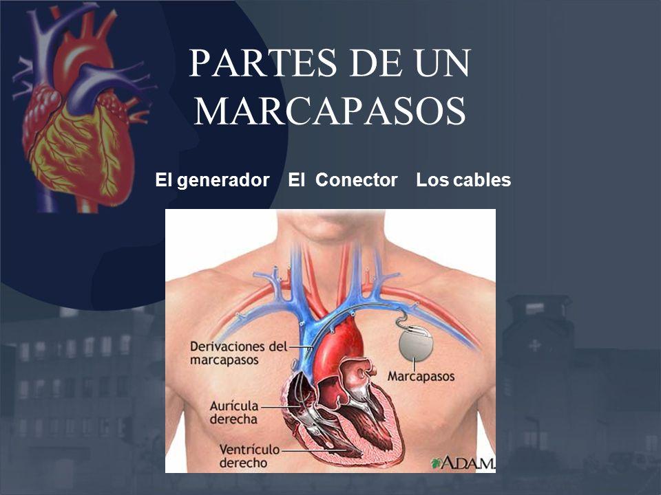 PARTES DE UN MARCAPASOS El generador El Conector Los cables