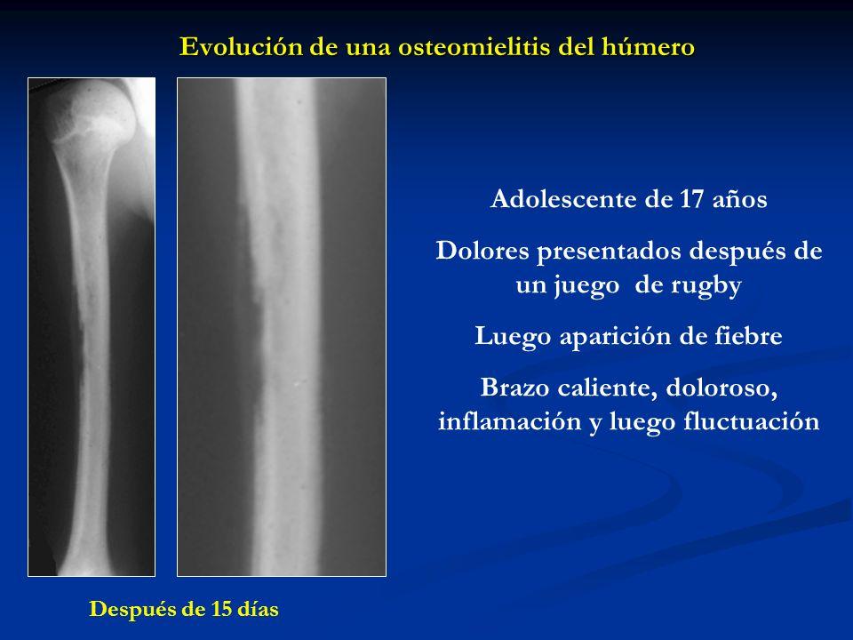 Evolución de una osteomielitis del húmero Adolescente de 17 años Dolores presentados después de un juego de rugby Luego aparición de fiebre Brazo cali