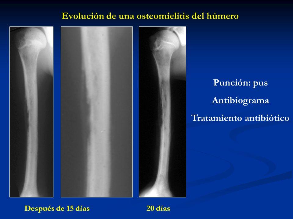 Evolución de una osteomielitis del húmero Punción: pus Antibiograma Tratamiento antibiótico Después de 15 días 20 días