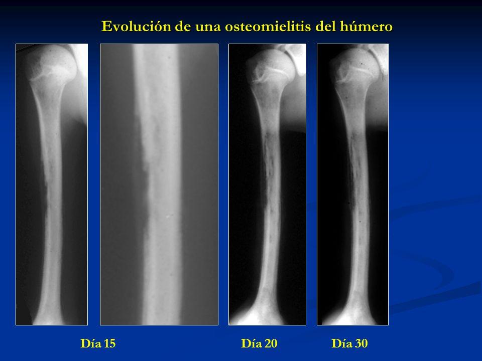 Evolución de una osteomielitis del húmero Día 15 Día 20 Día 30