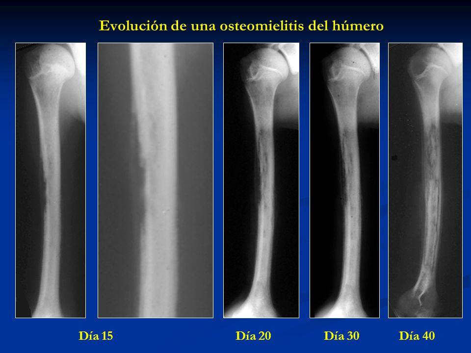 Evolución de una osteomielitis del húmero Día 15 Día 20 Día 30 Día 40