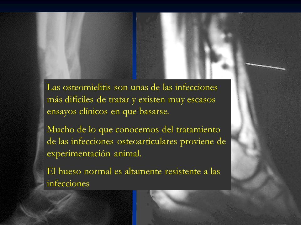 Las osteomielitis son unas de las infecciones más difíciles de tratar y existen muy escasos ensayos clínicos en que basarse. Mucho de lo que conocemos