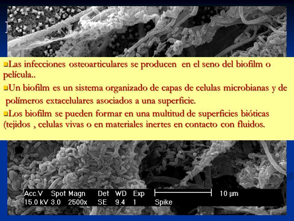 Infecciones en el seno del biofilm Las infecciones osteoarticulares se producen en el seno del biofilm o película.. Las infecciones osteoarticulares s