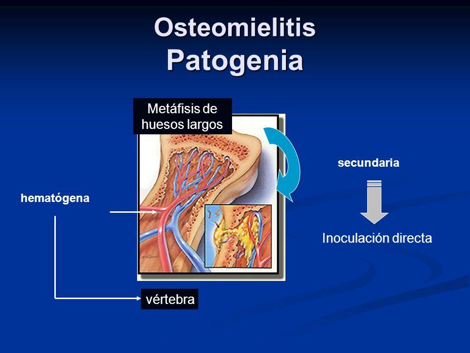 Osteomielitis Patogenia hematógena Metáfisis de huesos largos vértebra secundaria Inoculación directa