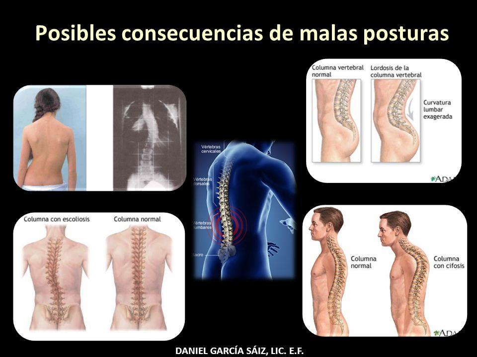 Posibles consecuencias de malas posturas DANIEL GARCÍA SÁIZ, LIC. E.F.