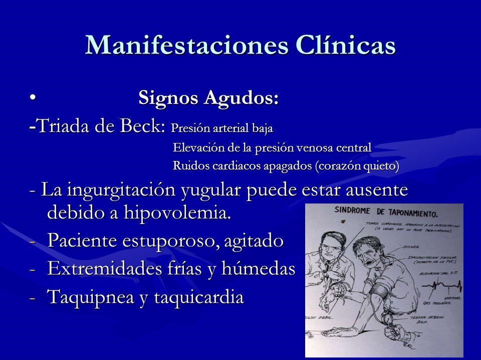 Manifestaciones Clínicas Signos Agudos: Signos Agudos: -Triada de Beck: Presión arterial baja Elevación de la presión venosa central Elevación de la p