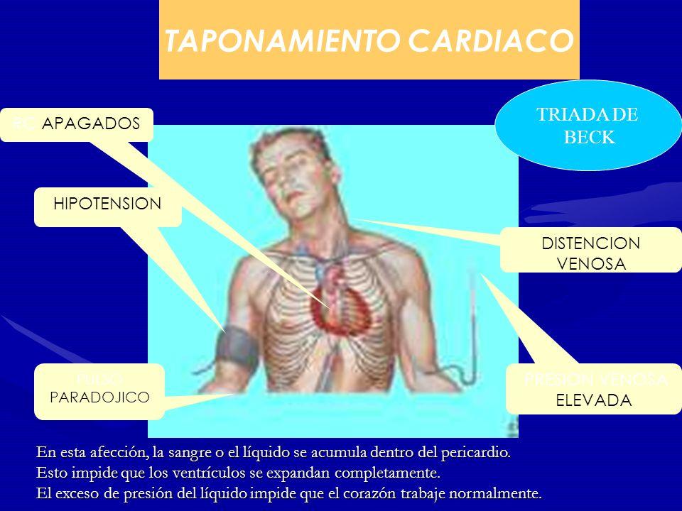 TAPONAMIENTO CARDIACO PRESION VENOSA ELEVADA HIPOTENSION RC APAGADOS PULSO PARADOJICO DISTENCION VENOSA TRIADA DE BECK En esta afección, la sangre o e