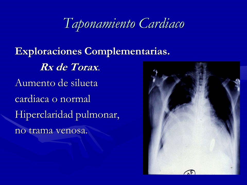 Taponamiento Cardiaco Exploraciones Complementarias. Rx de Torax. Rx de Torax. Aumento de silueta cardiaca o normal Hiperclaridad pulmonar, no trama v