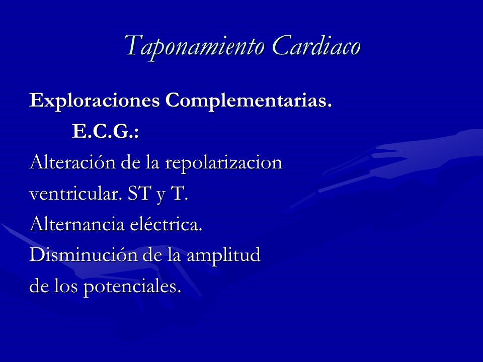 Taponamiento Cardiaco Exploraciones Complementarias. E.C.G.: E.C.G.: Alteración de la repolarizacion ventricular. ST y T. Alternancia eléctrica. Dismi