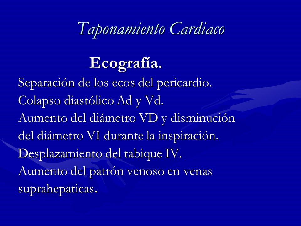 Taponamiento Cardiaco Ecografía. Ecografía. Separación de los ecos del pericardio. Colapso diastólico Ad y Vd. Aumento del diámetro VD y disminución d