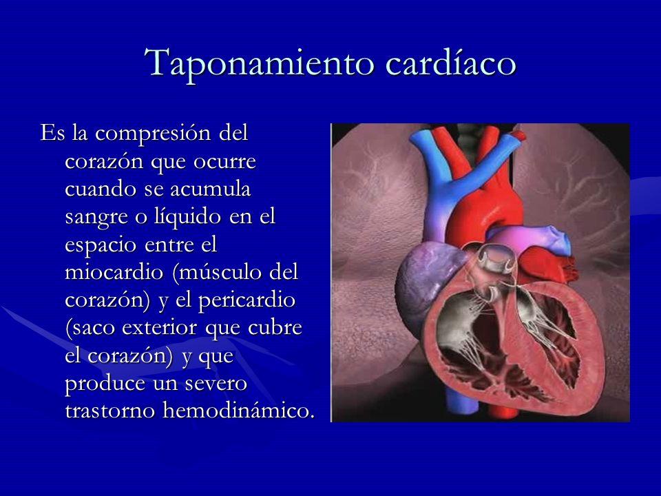 Taponamiento Cardiaco El efecto principal de la compresión cardíaca es una alteración en el llenado de las cavidades durante la diástole, lo cual lleva a una disminución del gasto El efecto principal de la compresión cardíaca es una alteración en el llenado de las cavidades durante la diástole, lo cual lleva a una disminución del gasto cardíaco y de la presión cardíaco y de la presión arterial en un espectro arterial en un espectro variable en el que el variable en el que el paciente severamente paciente severamente comprometido puede estar comprometido puede estar en shock cardiogénico.
