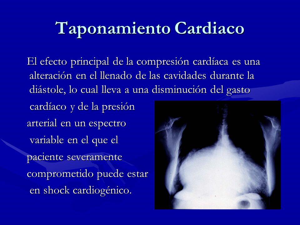 Taponamiento Cardiaco El efecto principal de la compresión cardíaca es una alteración en el llenado de las cavidades durante la diástole, lo cual llev