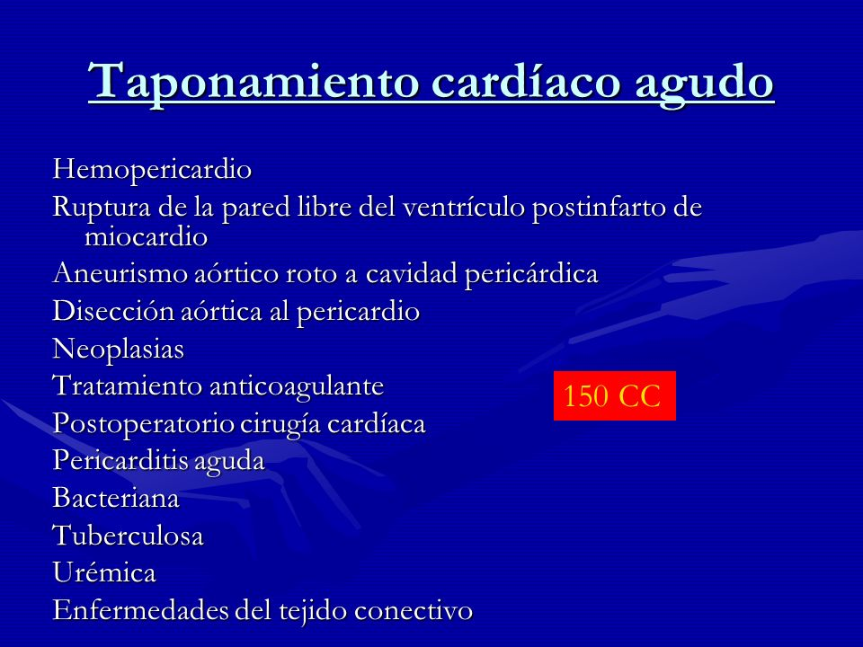 Taponamiento cardíaco agudo Hemopericardio Ruptura de la pared libre del ventrículo postinfarto de miocardio Aneurismo aórtico roto a cavidad pericárd