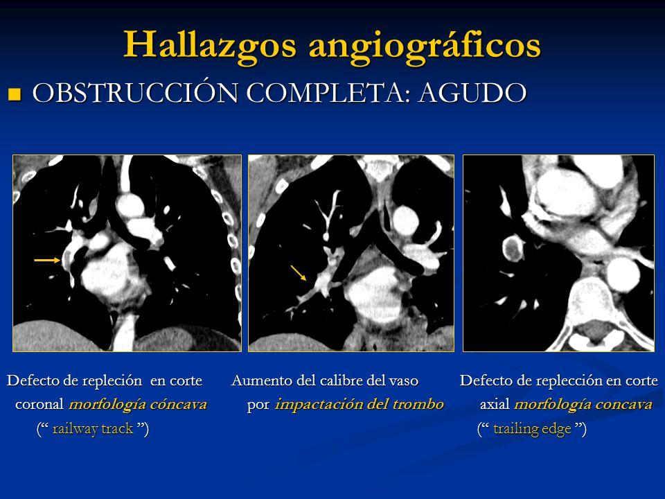 Hallazgos angiográficos OBSTRUCCIÓN COMPLETA: AGUDO OBSTRUCCIÓN COMPLETA: AGUDO Defecto de repleción en corte Aumento del calibre del vaso Defecto de